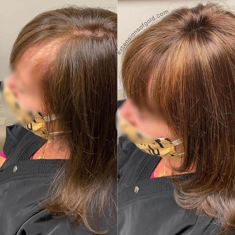 Custom Made Top Hair Piece with Bangs to Add Hair Volume for Thinning Hair Line [C082632]