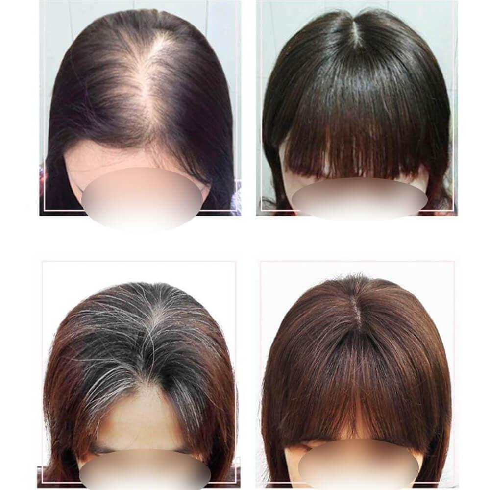 Custom Made Hair Topper to Add Hair Volume for Thinning Hair Loss